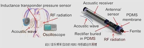 能以音乐启动的MEMS传感器